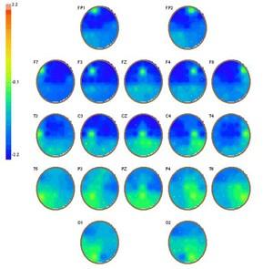 Brain Coordination Maps